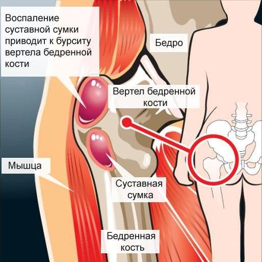Признаки подвздошно гребешкового бурсита