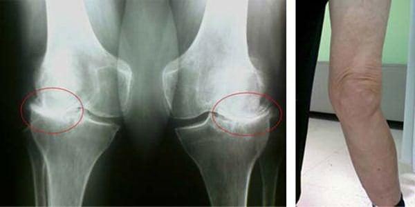 Как вылечить коленные суставы быстро и надолго