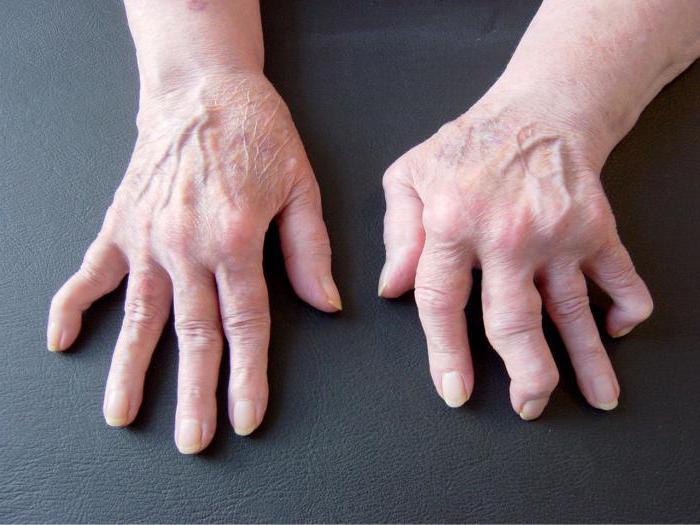 Болят суставы пальцев рук рецепты thumbnail