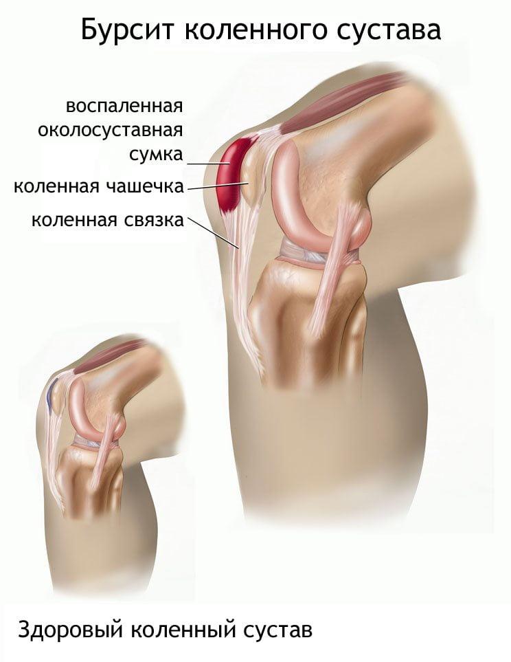 Изображение - Бурсит коленного сустава лекарства Bursit-kolennogo-sustava-2