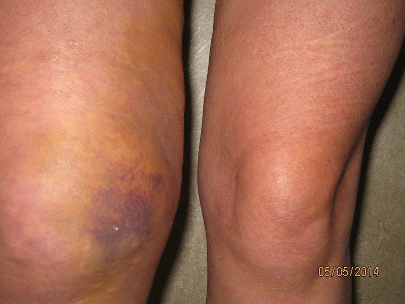 Изображение - Вода в коленном суставе лечение IMG_1764