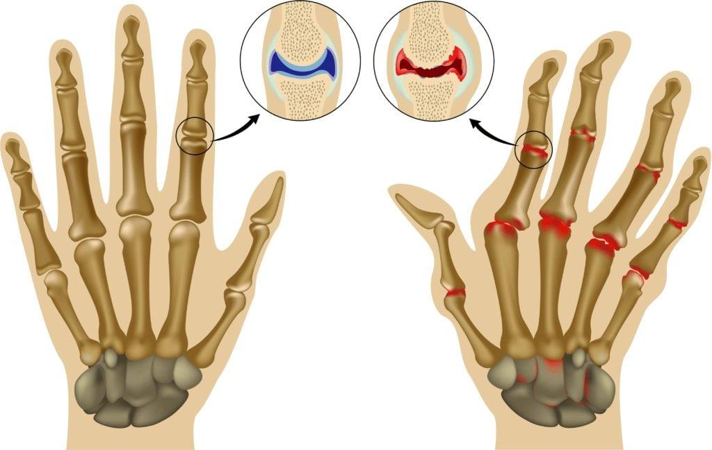 Воспаление суставов лечение суставов