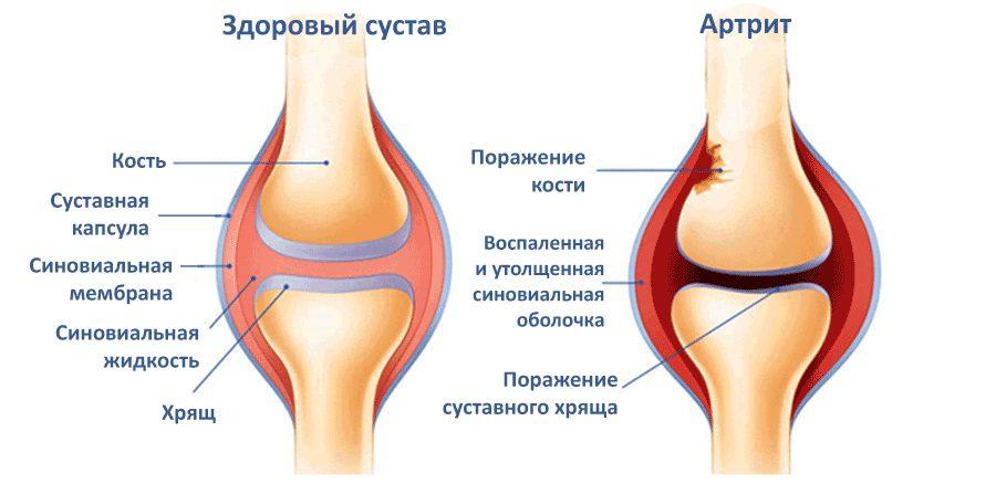 Чем снять воспаление суставов народными средствами