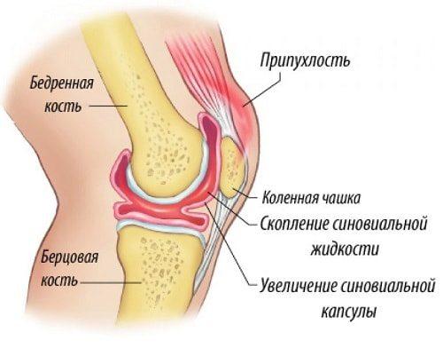В суставной сумке коленного сустава находится вязкая жидкость лимфа