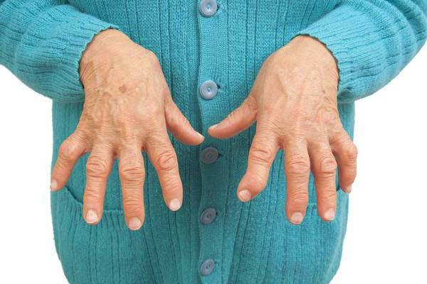 Изображение - Воспаление лучезапястного сустава лечение artrit-sustavov-palcev-ruk