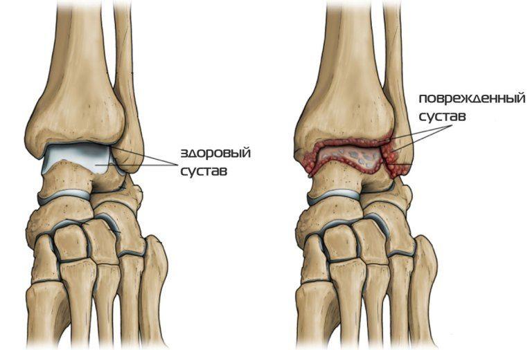 Гнойный артрит голеностопного сустава лечение антибиотиками thumbnail