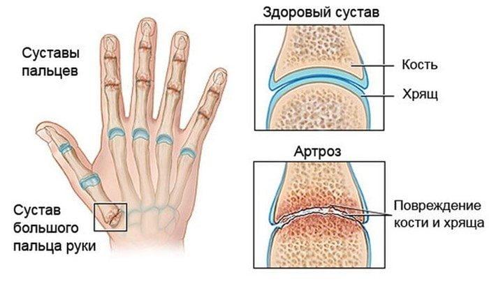 Изображение - Подвижность суставов пальцев artrozpaltsevrukkaklechitsimptomiprichin_9AF9C3AF