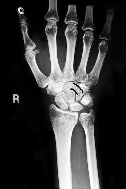 Изображение - Воспаление лучезапястного сустава лечение bc28eb54907a