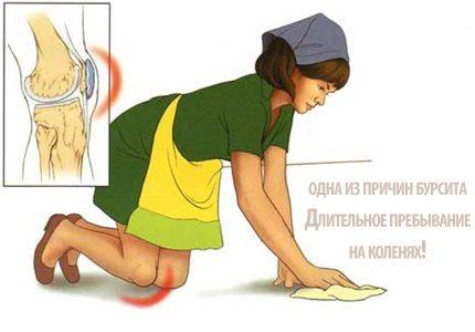 Изображение - Бурсит коленного сустава лекарства bursit-kolennogo-sustava
