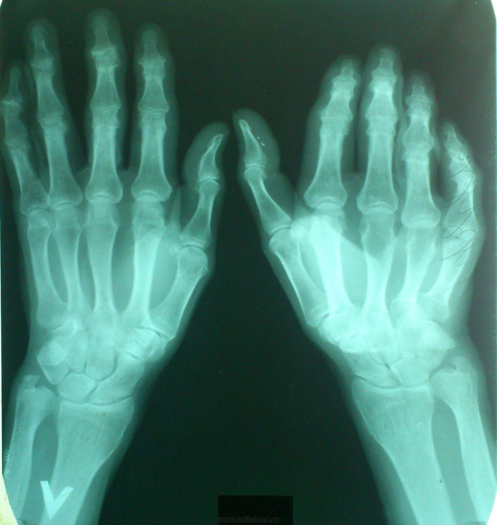 Болезни суставов пальцев рук перечень основных диагнозов и способов лечения