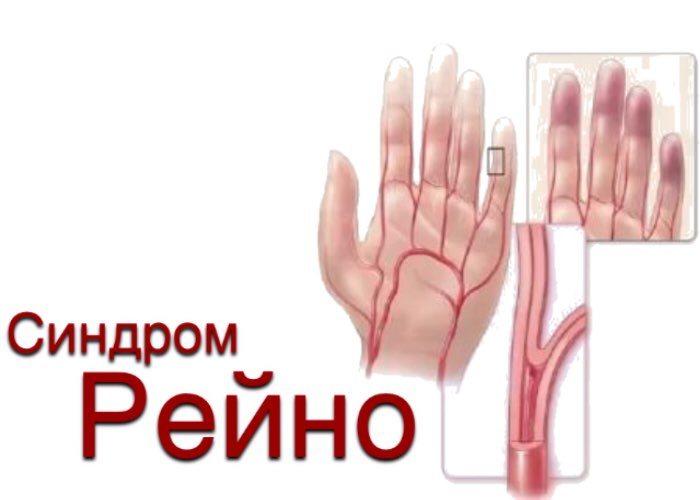 Болят локтевые суставы немеют пальцы рук причины и лечение