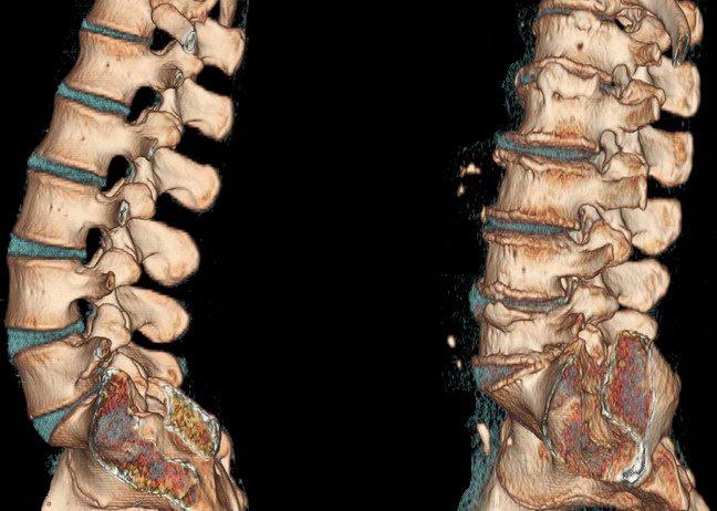Уколы при остеохондрозе поясничного отдела описание средств