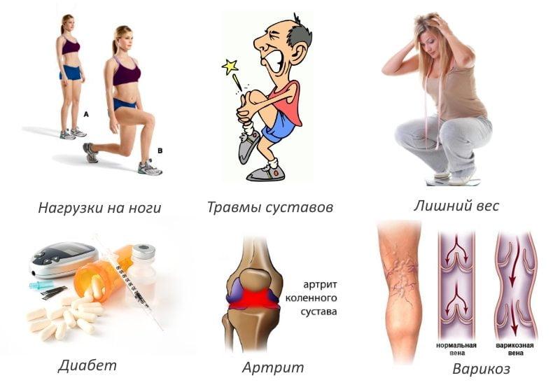 Воспаление коленного сустава чем снять thumbnail