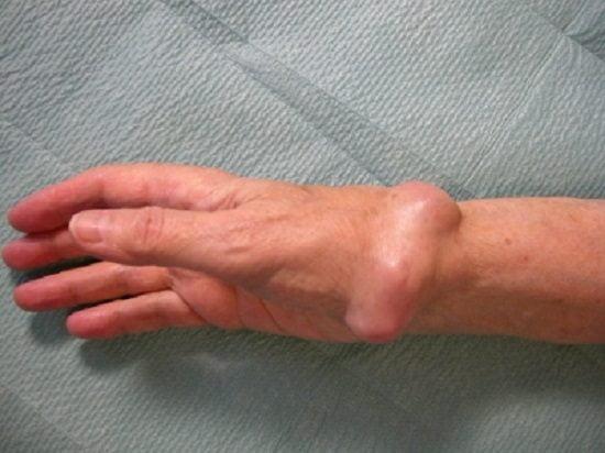 Изображение - Воспаление лучезапястного сустава лечение osteoma