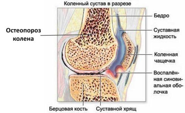 Чем лечить остеопороз в домашних условиях простейшие методы