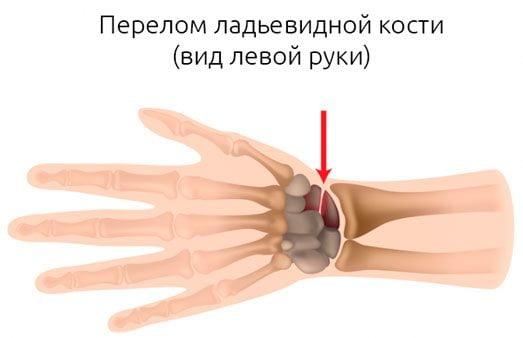 Изображение - Воспаление лучезапястного сустава лечение perelom-ladevidnoj-kosti-kisti-foto-3