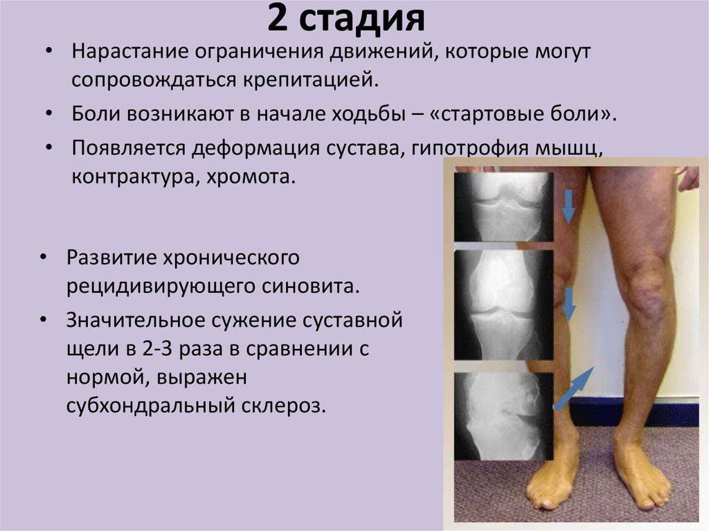 Деформирующий остеоартроз относится к группе заболеваний