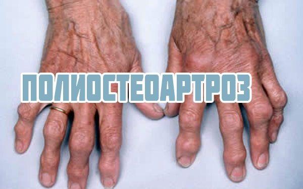 Народные средства лечения большого пальца руки
