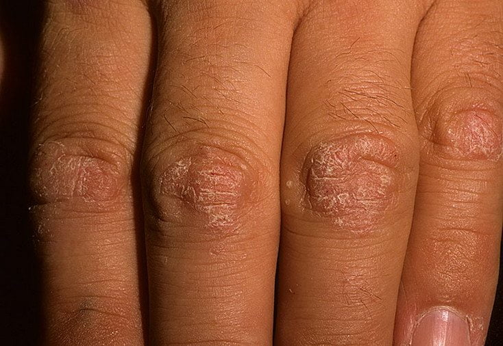 Опух палец на руке сустав лечение народными средствами