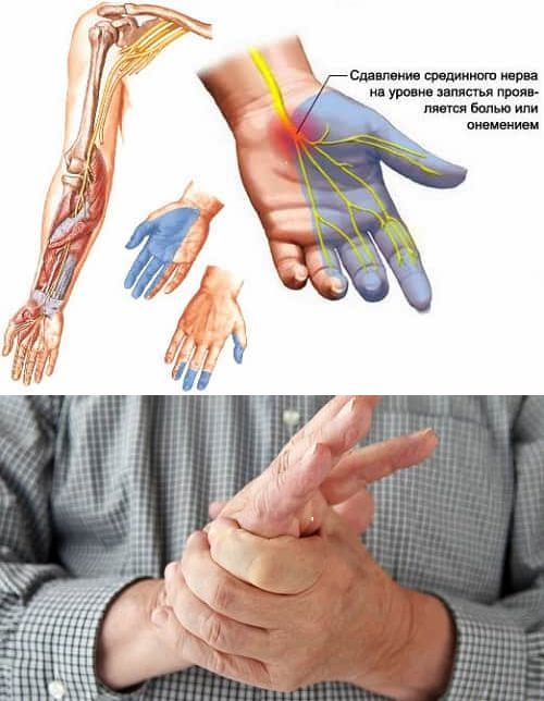 Изображение - Болят суставы кистей рук и немеют resize