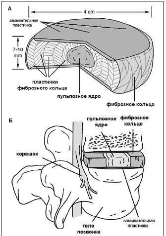 Заболевания пояснично-крестцового отдела позвоночника их симптомы и лечение