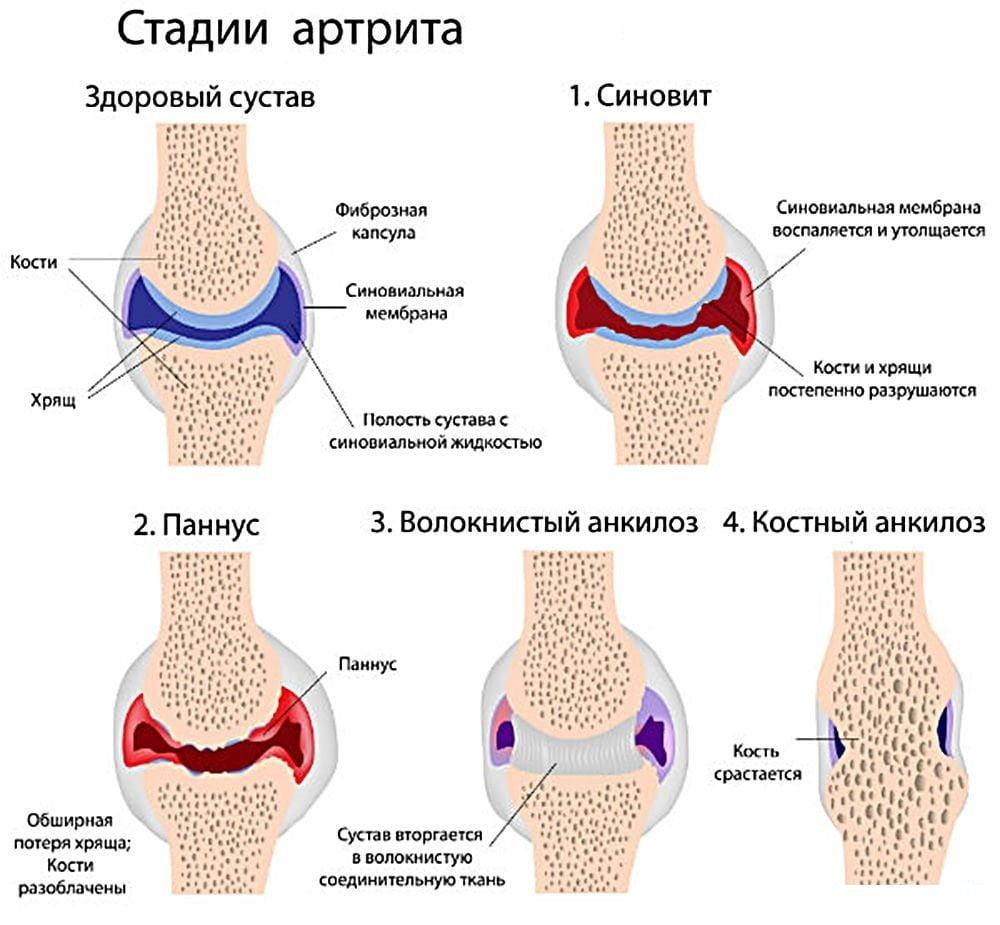 Изображение - Методы лечения артрита коленного сустава stadii-artrita