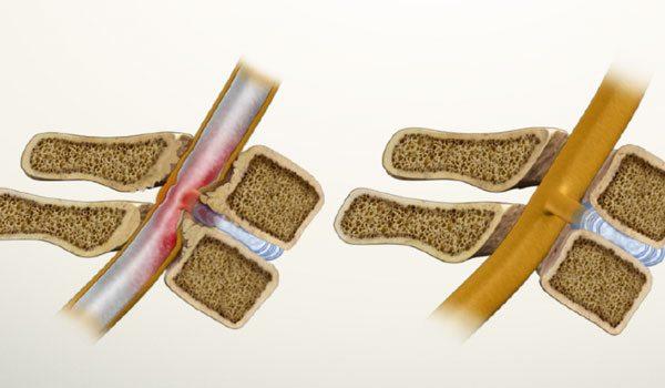 Реабилитация после операции на позвоночнике поясничного отдела стеноз