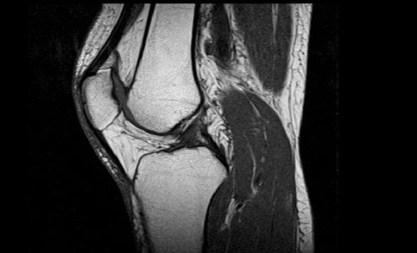 Мениск коленного сустава мрт или узи