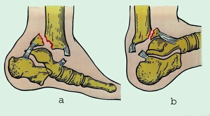 Если болит сустав голеностопа