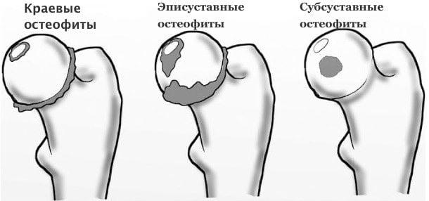 Шейка бедра симптомы заболевания