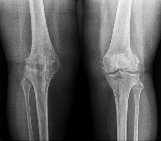 Изображение - Деформирующий артрозо артрит тазобедренного сустава 14486997714691912054