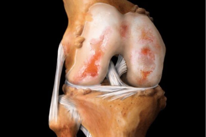 Изображение - Всегда нужна операция при гонартрозе коленных суставов 2881_690x460