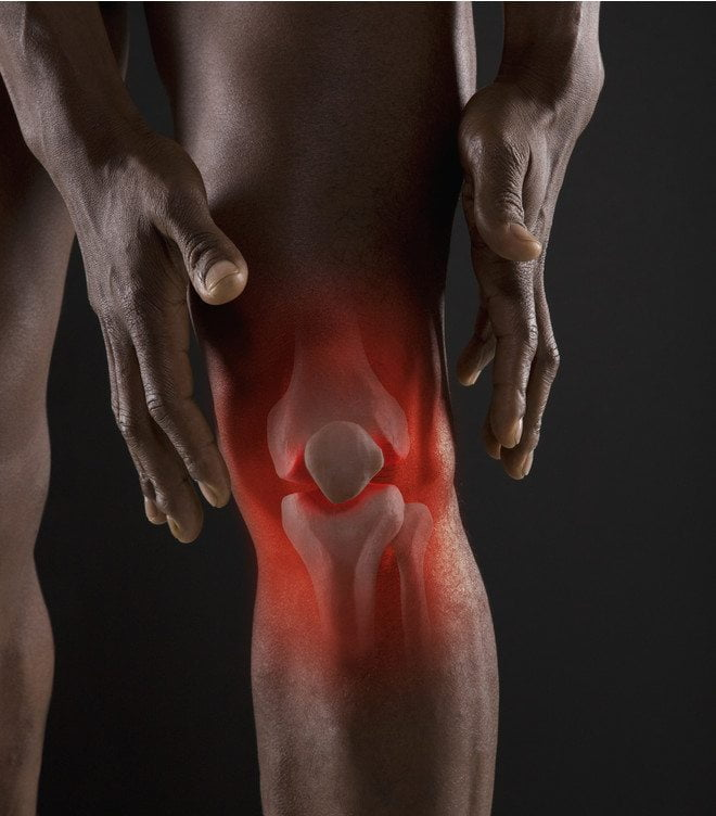 Противовоспалительные препараты при артрите коленного сустава