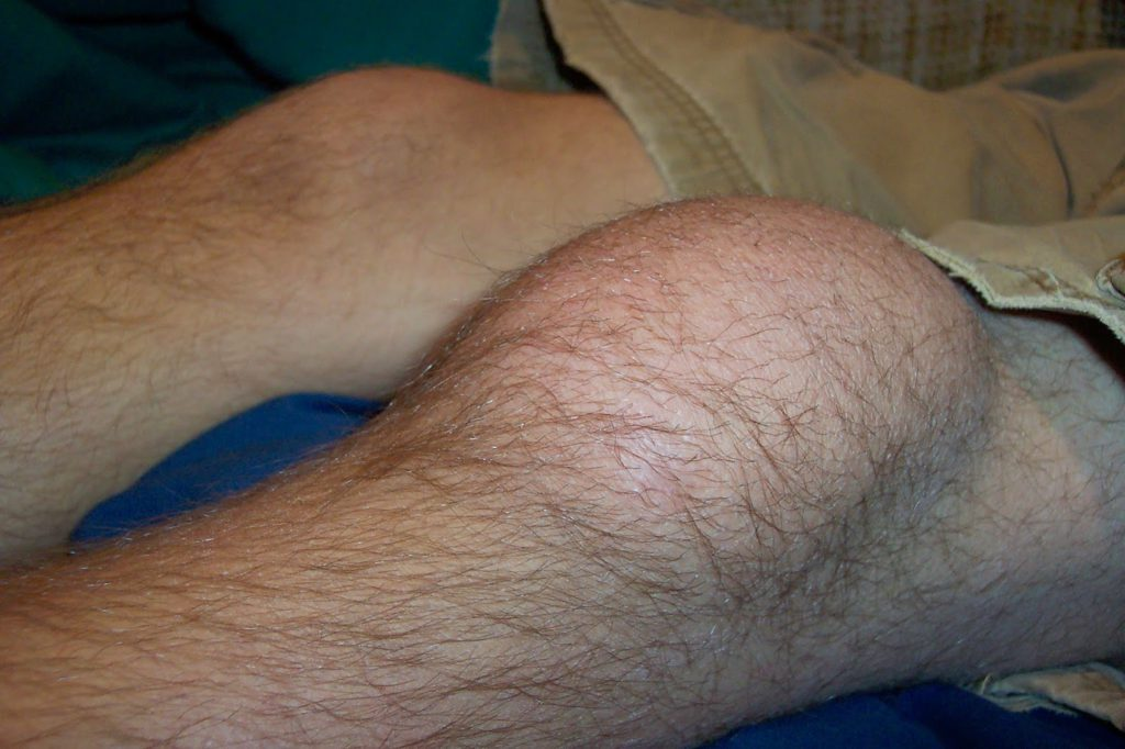 Лечение ушибов связок коленного сустава