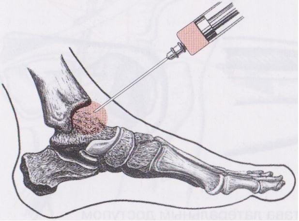 Как выглядит деформирующий артроз голеностопного сустава