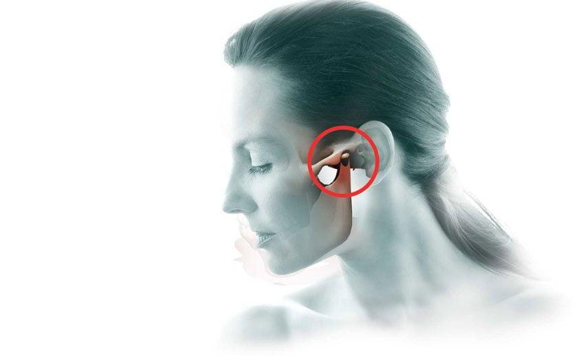 Анкилоз височно-нижнечелюстного сустава - симптомы и лечение