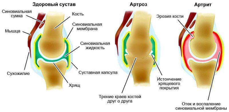 Артрит коленного сустава лечение 1 степени