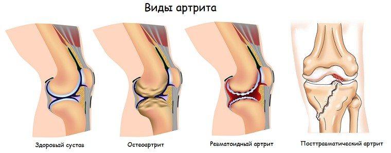 Изображение - Реактивный артрит коленного сустава лечение artrit3
