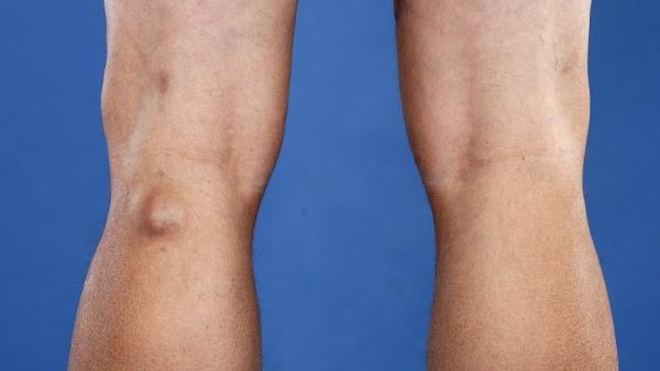 Симптомы плавающего надколенника причины болезни клиническая картина диагностика