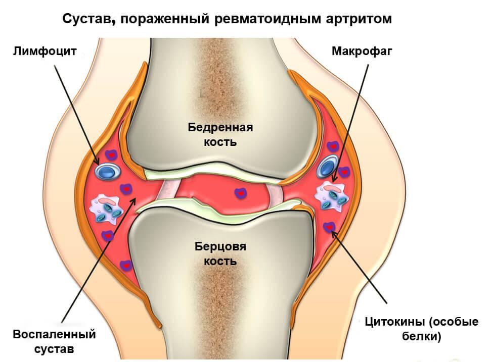 Правильные продукты питания при подагрическом артрите