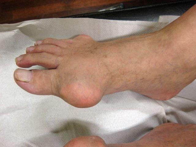 Болит нога воспалился сустав