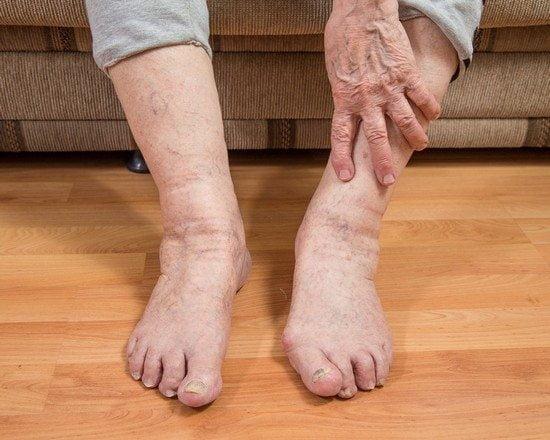 Изображение - Боль суставов ног народная медицина c8b875d38953d090c111d80e21da641b
