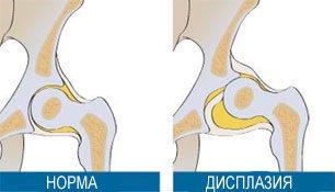 Дегенеративные изменения суставной губы тазобедренного сустава