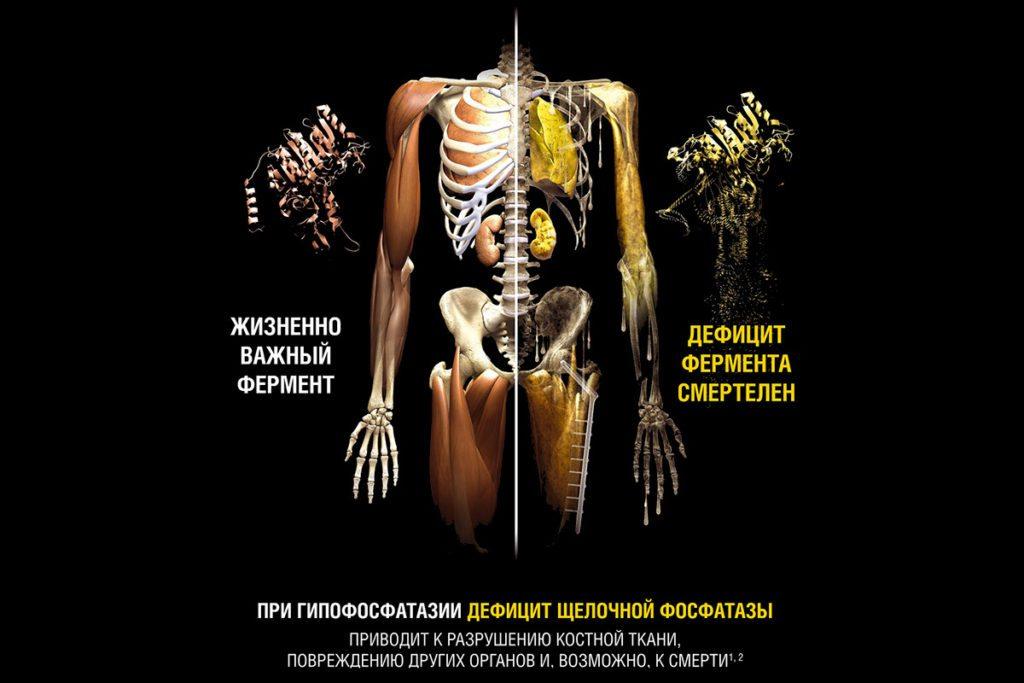 Болят все суставы и кости причины лечение