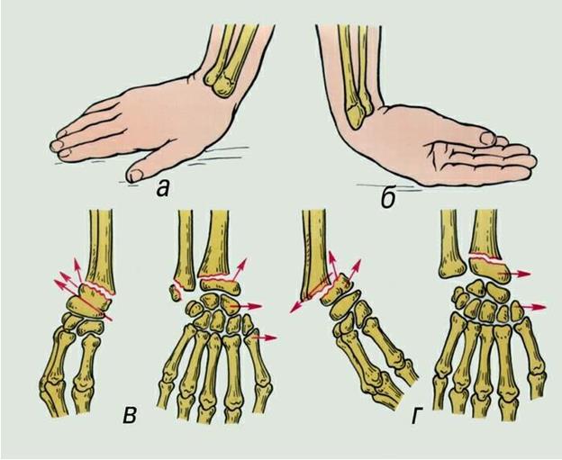 Как снять боль при ушибе кисти руки
