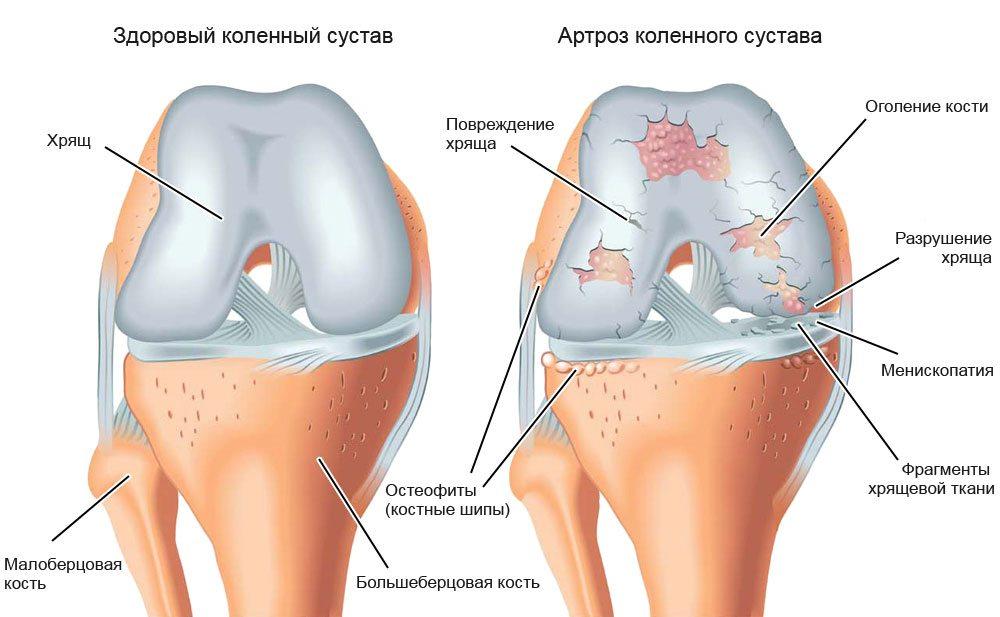 Изображение - Доа левого коленного сустава 3 степени izmeneniya-pri-artroze-2