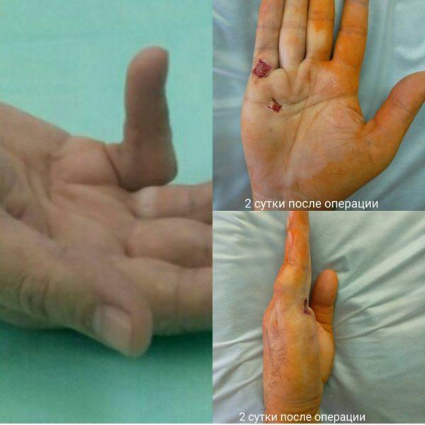 Как вылечить контрактуру в ноге