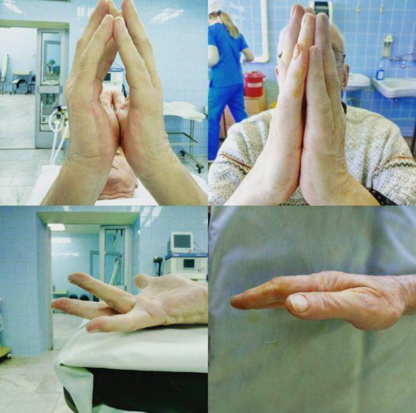 Ладонный фасциальный фиброматоз дюпюитрена лечение без операции