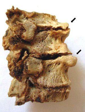 Распространенный остеохондроз шейного, грудного и поясничного отдела позвоночника