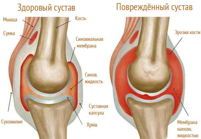 Артрит колена у детей симптомы